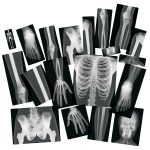 *Light Cube Accessories and X-rays