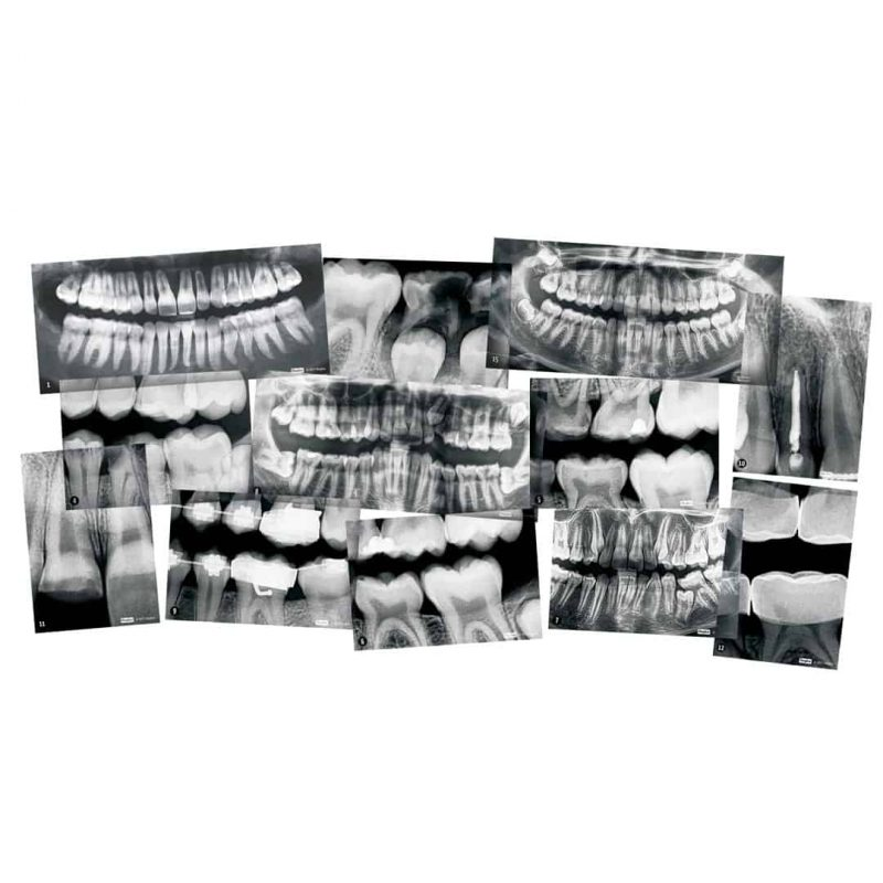 Roylco dental xrays included in kit.