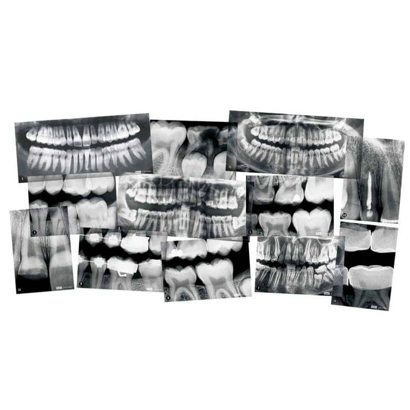 Roylco dental xrays included in kit.